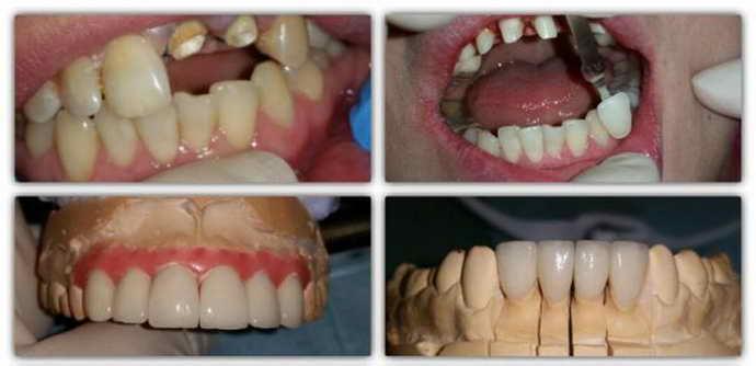 Бруксизм от разрушения зубов