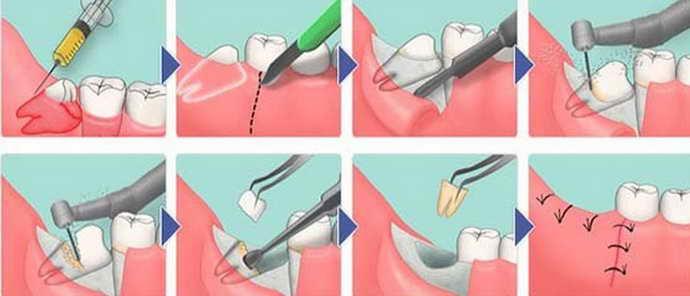 Лоскутные операции удаления зубов мудрости