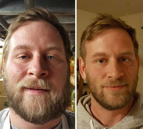 Алкоголик до и после того, как бросил пить