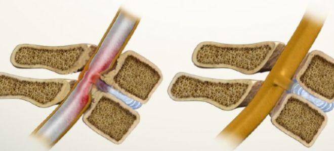 Стеноз позвоночного канала поясничного отдела: симптомы и лечение