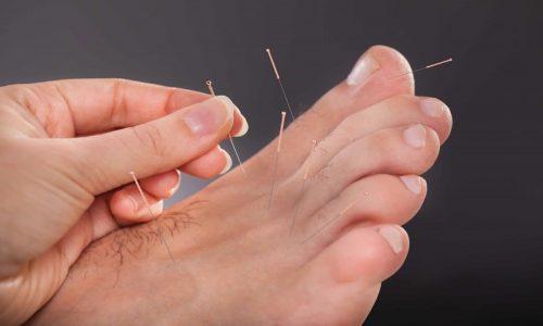 Лечение нейропатии малоберцового нерва