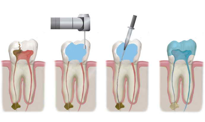 Традиционная схема пломбирования зубов