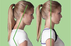 нормальное положении шеи