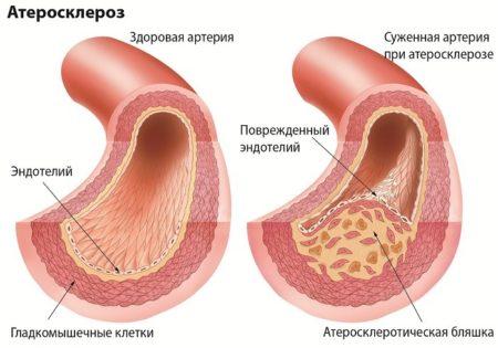 Признаки гангрены при сахарном диабете, причины возникновения, лечение патологии