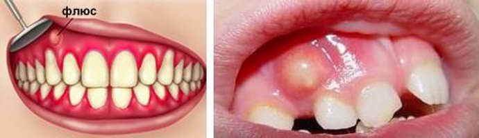 Возможная инфекция в зубе