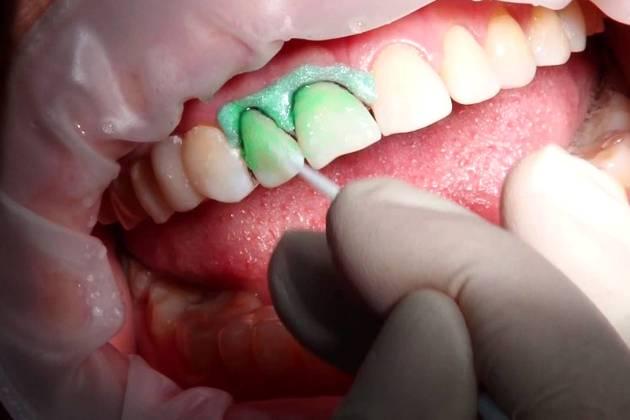 лечение зубов без боли по методу Айкон