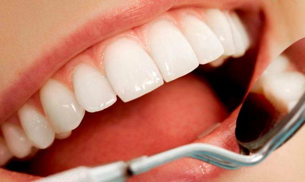 После установки терапевтических виниров нужно регулярно посещать стоматолога