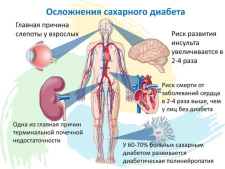 Показания к проведению анализов на сахарный диабет, их информативность и потенциальные осложнения болезни