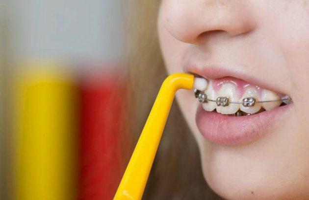Монопучковая зубная щетка идеальна при ношении брекетов