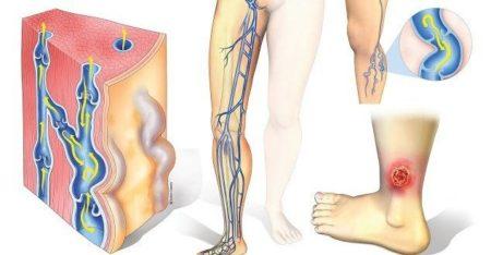 Причины развития трофической язвы при сахарном диабете и методы лечения патологии на ноге