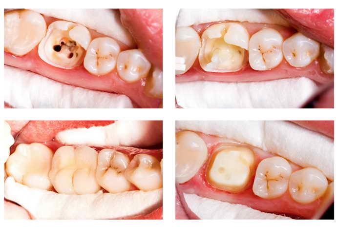 Преимущества зубной коронки