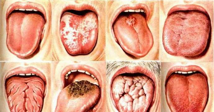 Воспалительные процессы разной этиологии и боль языка сбоку