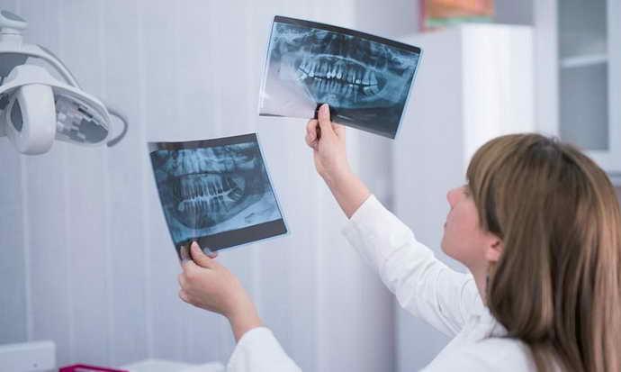 Рентгенологическое исследование апикального периодонтита
