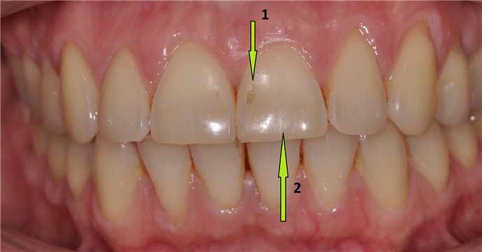 Показания и противопоказания к микропротезированию зубов