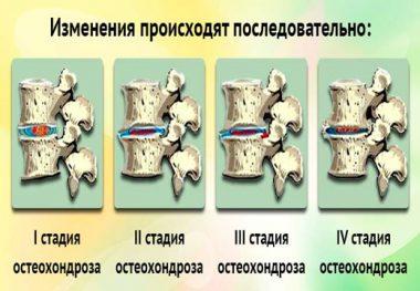 кость при остеохондрозе