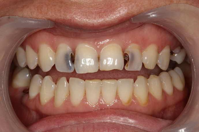 большие кариозные очаги во рту