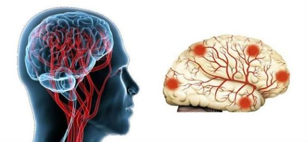 Органическое поражение головного мозга
