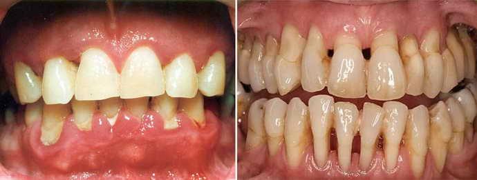 вертикальный перелом зуба