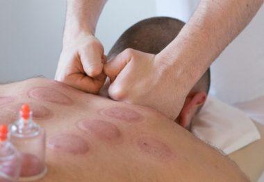 баночный массаж при остеохондрозе