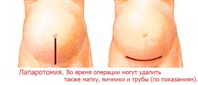 Лапаротомия