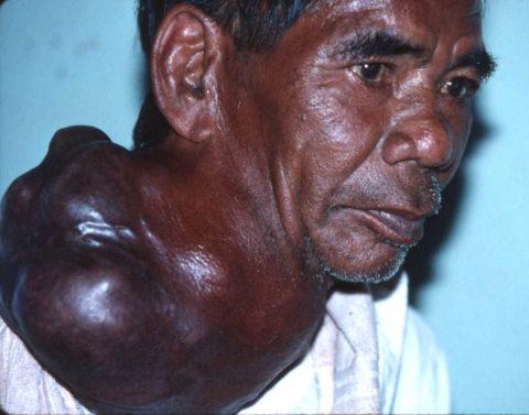 Гигантское образование узлов щитовидки