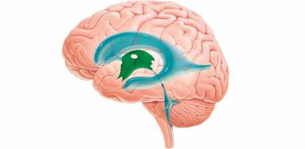 Дилатация боковых желудочков мозга