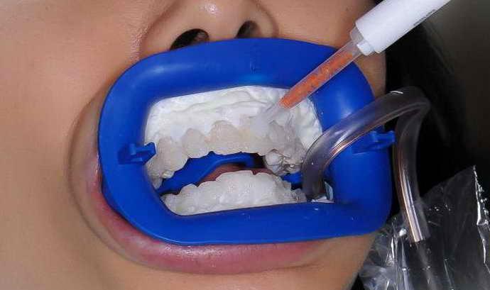 Химическая чистка зубного камня