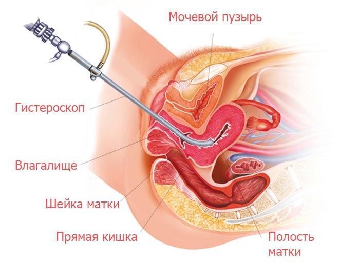 Диагностируется с помощью гистероскопического исследования после проведения визуального осмотра у гинеколога.