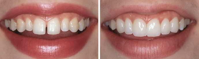 Достоинства микропротезирования зубов