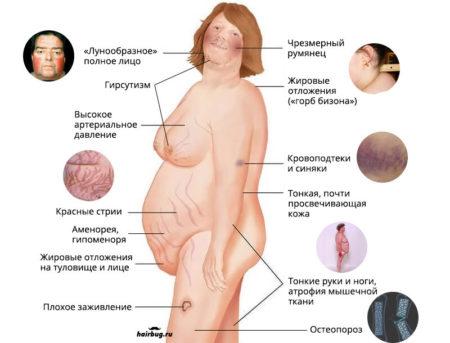 Причины возникновения сыпи при выраженном сахарном диабете, симптомы, принципы лечения, диагностика и осложнения