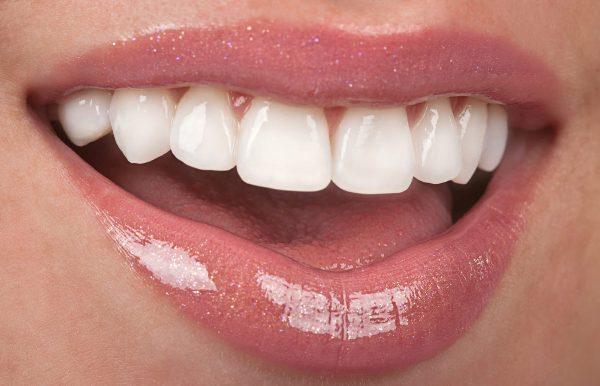 фарфоровые коронки иммитируют эмаль зубов