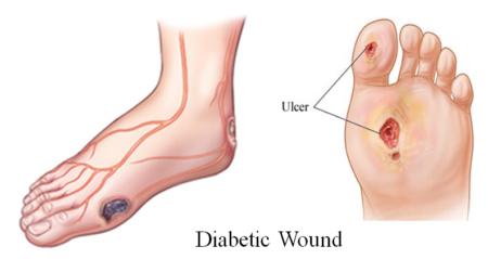 Лечение диабетической ангиопатии нижних конечностей, профилактика недуга