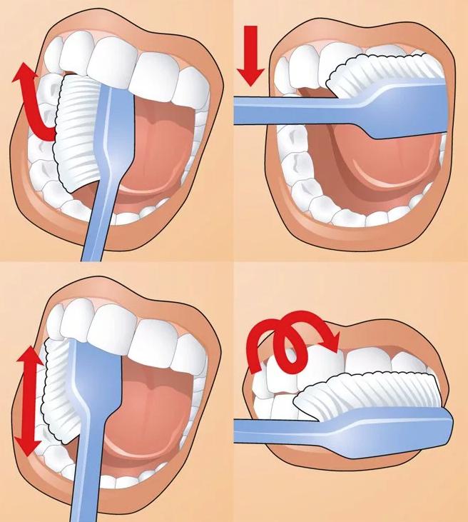 Рекомендации по уходу за полостью рта